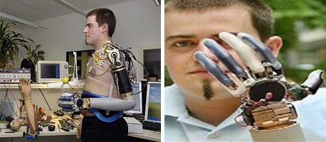 Christian Kandlbauer high tech prosthetic arms