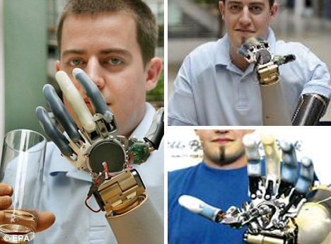 Christian Kandlbauer mind controlled prosthetic arms
