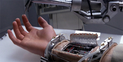 cybernetic arm