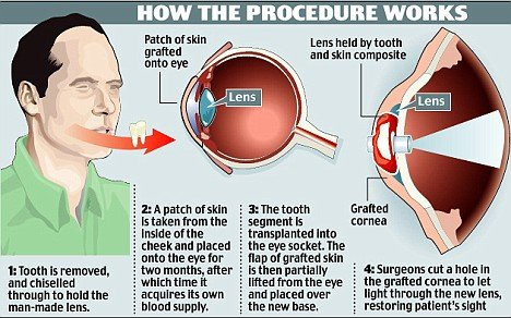 how the procedure works