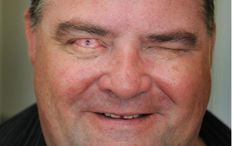 man with tooth eye transplant