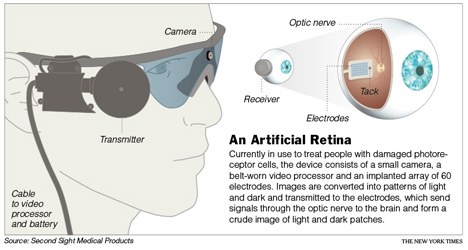 Second Chance At Sight Artificial Retinas Restore Vision