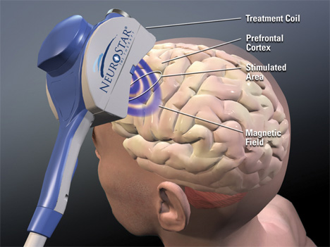 neurostar magnetic waves depression treatment