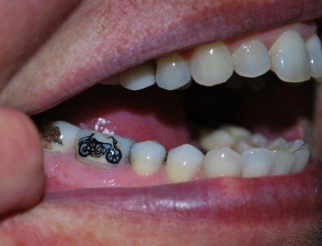 ιατρικών τατουάζ δοντιών αισθητήρα Τατουάζ δόντι ξέρει πότε θα πάμε να είναι άρρωστος ...  Πριν Είσαι!