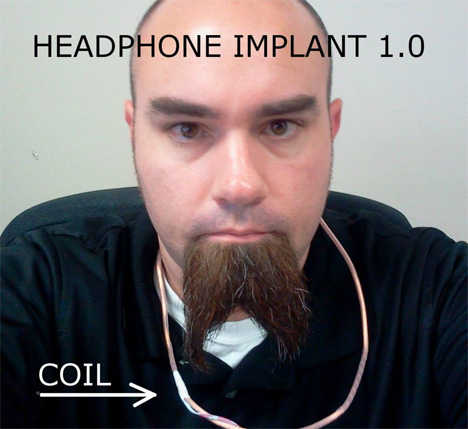 implanted headphones