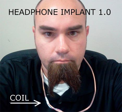 implanted headphones