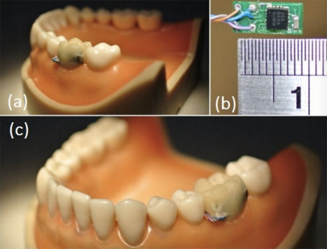 tooth movement sensor