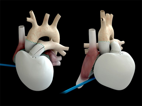 carmac artificial heart