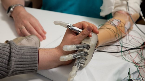 prosthetic hand able to feel
