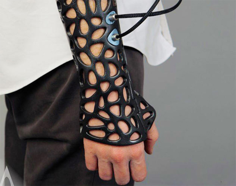 osteoid cast