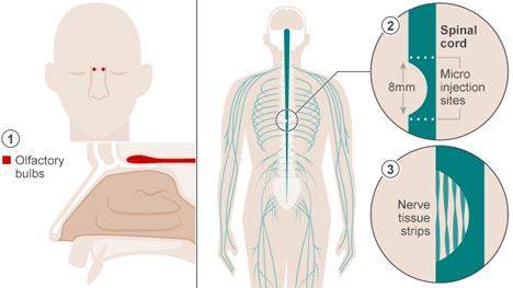 olfactory bulb cells transplant