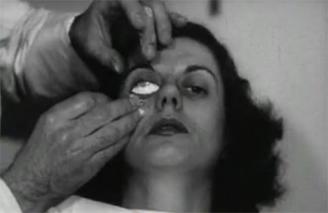 contact lens fitting 1940s