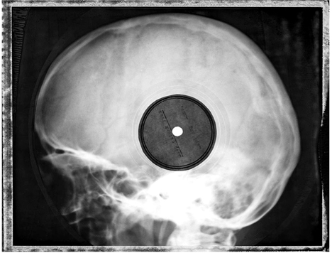 x ray records