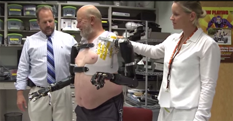bilateral prosthetic cyborg arms