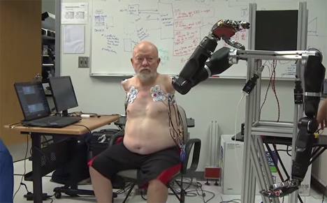 les baugh mind controlled robotic arms