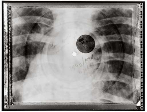 repurposed x rays turned into records