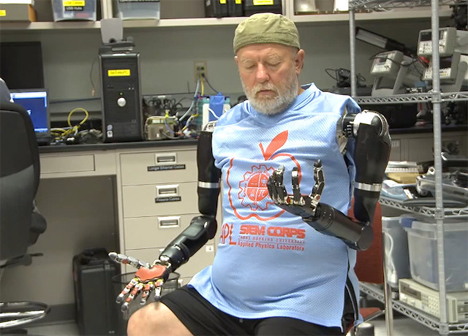 world's first double mind controlled prosthetic arms