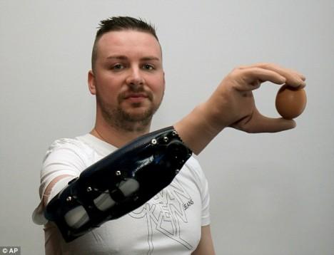 bionic hand function