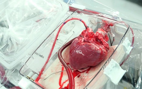 box keeps transplant hearts alive