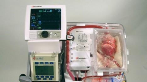 heart revival transplant machine